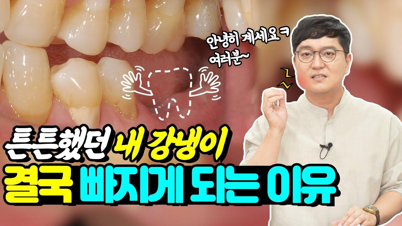 튼튼했던 치아가 빠질 수 밖에 없는 이유 | 세월이 가~면♪ 치아도 훅 가는 이유 치과의사가 알려드립니다