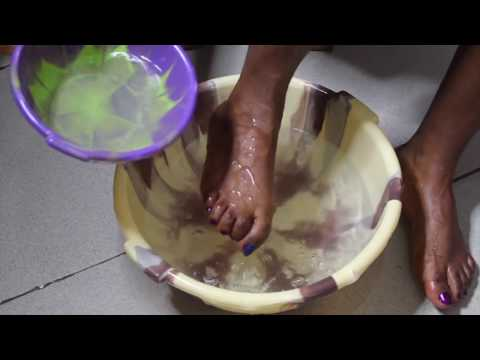 THIS TREATMENT WILL CURE TOENAIL FUNGUS IN LESS THAN A WEEK - YouTube