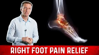 Amazing Right Foot Pain Relief by Dr. Berg