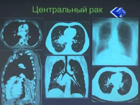 Как выглядит рак легких на кт