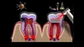 признаки и лечение пульпита (видео). www.clinicazubov.ru