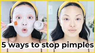 5 Ways To Stop Acne & Pimples FAST!