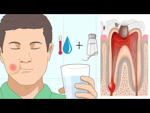 how-to-get-rid-of-toothache--toothache-home-remedies