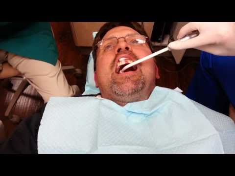 Dental work Selfie video: Maryland Bridge install