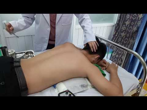 Doctor do electroacupuncture on patient's neck pain