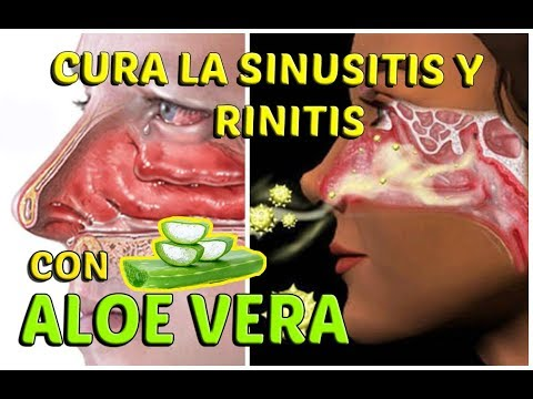 HOW TO CURE ALLERGIC SINUSITIS AND RHINITIS WITH ALOE VERA (NATURAL AND EFFECTIVE) | LifeStyle