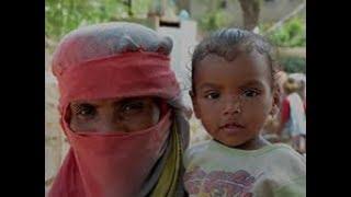 The effects of the blockade in Yemen