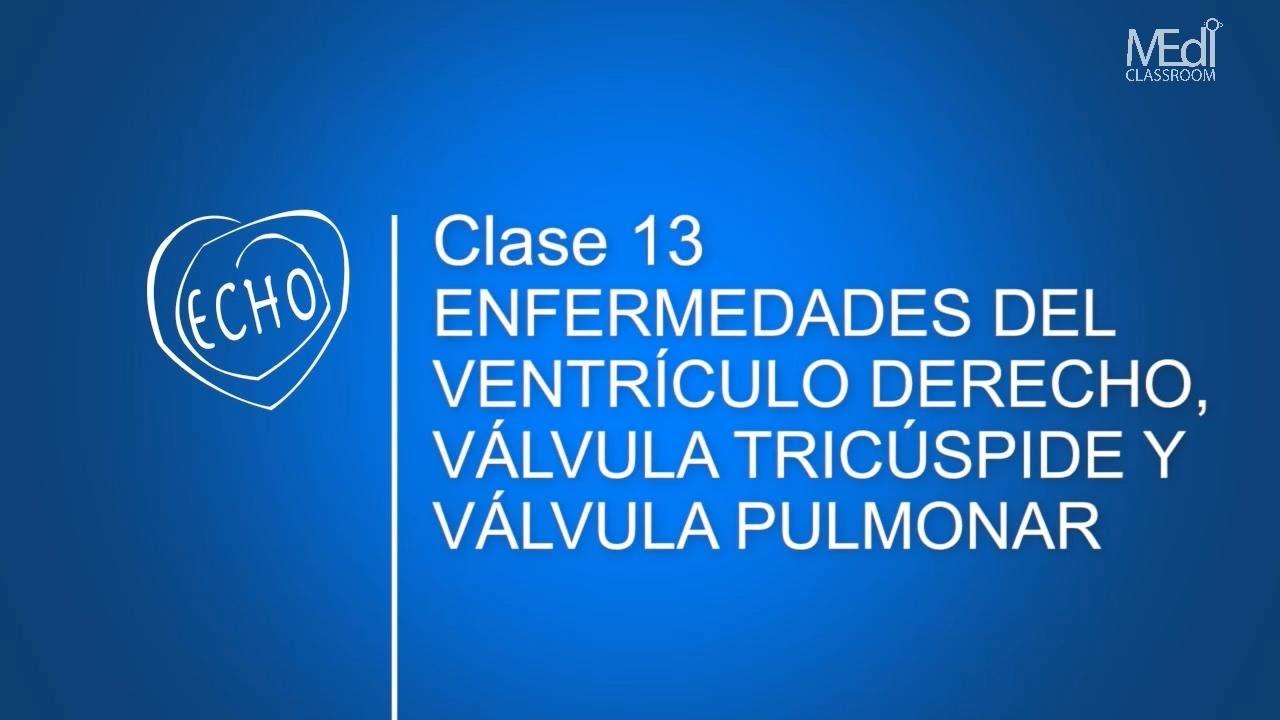 CLASE 13 - Enfermedades del Ventrículo Derecho, Válvula Tricúspide y ...