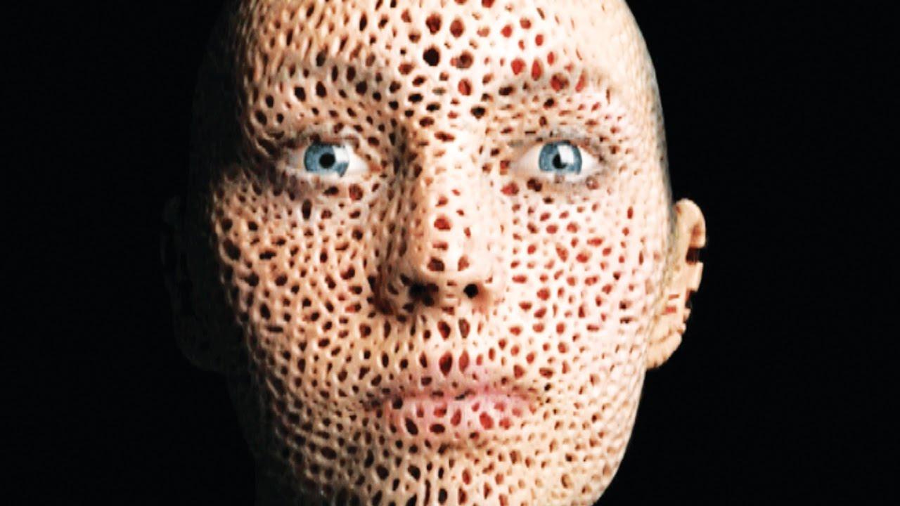 My Trypophobbia! Blackheads, Bot Flies, Zits & Pimple ...