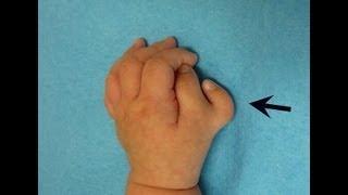 #原発 #放射能 #被曝 で #福島 新生児の指が6本❢字幕☆#Fukushima NewbornBaby Have6Fingers❢ thumbnail