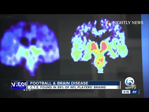 Reactions to new study on brain disease linked to football injuries