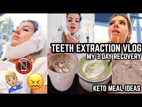 TEETH EXTRACTIONS VLOG  🎥📵 😓 Low Carb Food Ideas 🥤Weigh In 😱 ⚖️ USA Prep 🇺🇸 ❄️