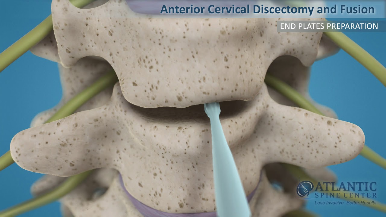 Download Anterior Cervical Discectomy and Fusion