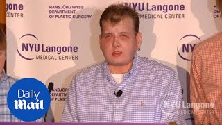Patrick Hardison talks about life a year after his face transplant - Daily Mail