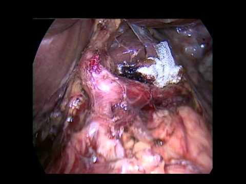 Laparoscopic completion radical chlocystectomy and lymphadenectomy ...