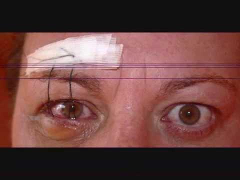Thyroid Eye Disease My Ted Journey 2004 2014 Youtube