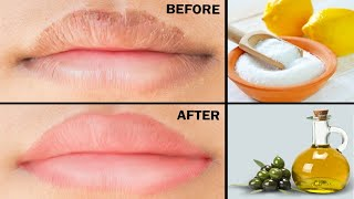 Simple Home Remedies for Dry Cracked LIPS! | Tips for chapped lips