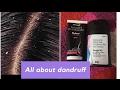 Dandruff | reasons | treatment | seborrheic dermatitis