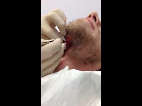 Throat Cut Open 41