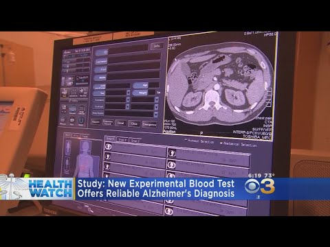 Study: New Experimental Blood Test Offers Reliable Alzheimer's Diagnosis