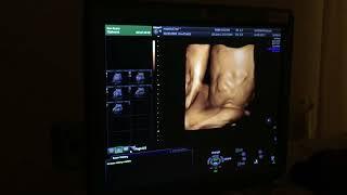 סקירת מערכות שלישית - תאומים בבטן