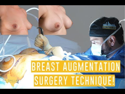 FULL BREAST AUGMENTATION SURGERY - Step by Step with Dr. Dallas