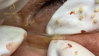 #7 #loannguyen - Lấy mụn ẩn dưới da lâu năm cho cô 60 tuổi- Remove big acne for older woman
