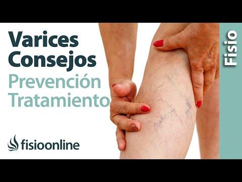 Mala circulación y varices - 10 consejos para su prevención y tratamiento