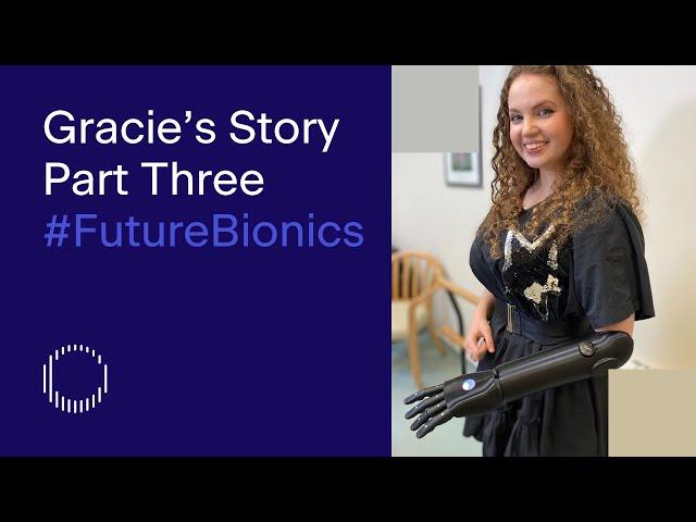 Bionic Actress Gracie McGonigal | Part Three of Five | Tej Kohli #FutureBionics