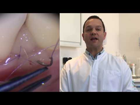 Dr. Claudio Julio Lopes AMED 2017 Hands-on MicroSuturing