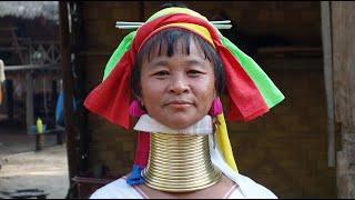 缅甸长颈族的女人,把铜圈摘下来后,脖子会变成什么样子?