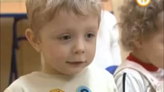 видео Варусная деформация стопы у детей