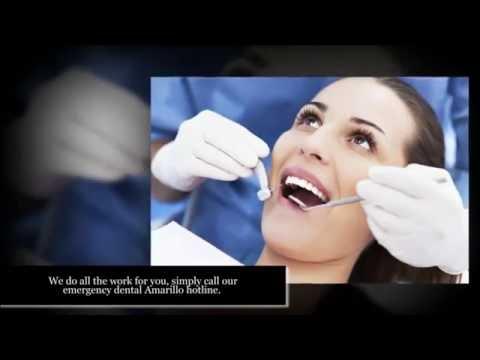 Emergency Dentists Amarillo TX – 1 (855) 411-0348 – Find A 24 Hour Dentist