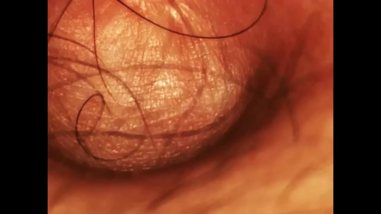 Close up belly button
