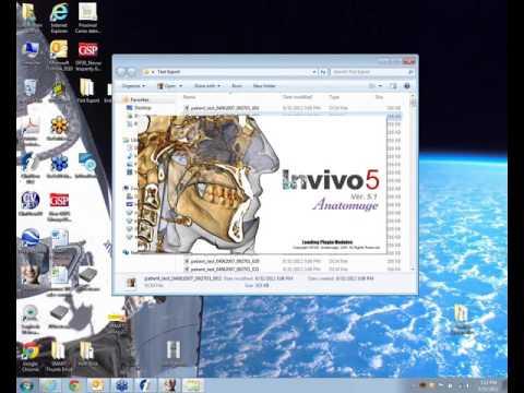 2012 08 31 15 00 3D Volume Data   DICOM Export, or InVivo file