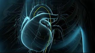 Perna crescer coração de volta veia bypass