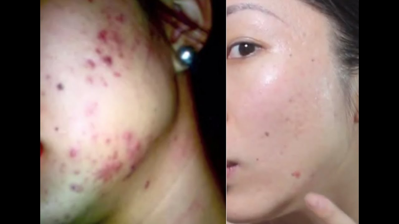 How to get rid of acne acne scarring youtube ccuart Choice Image