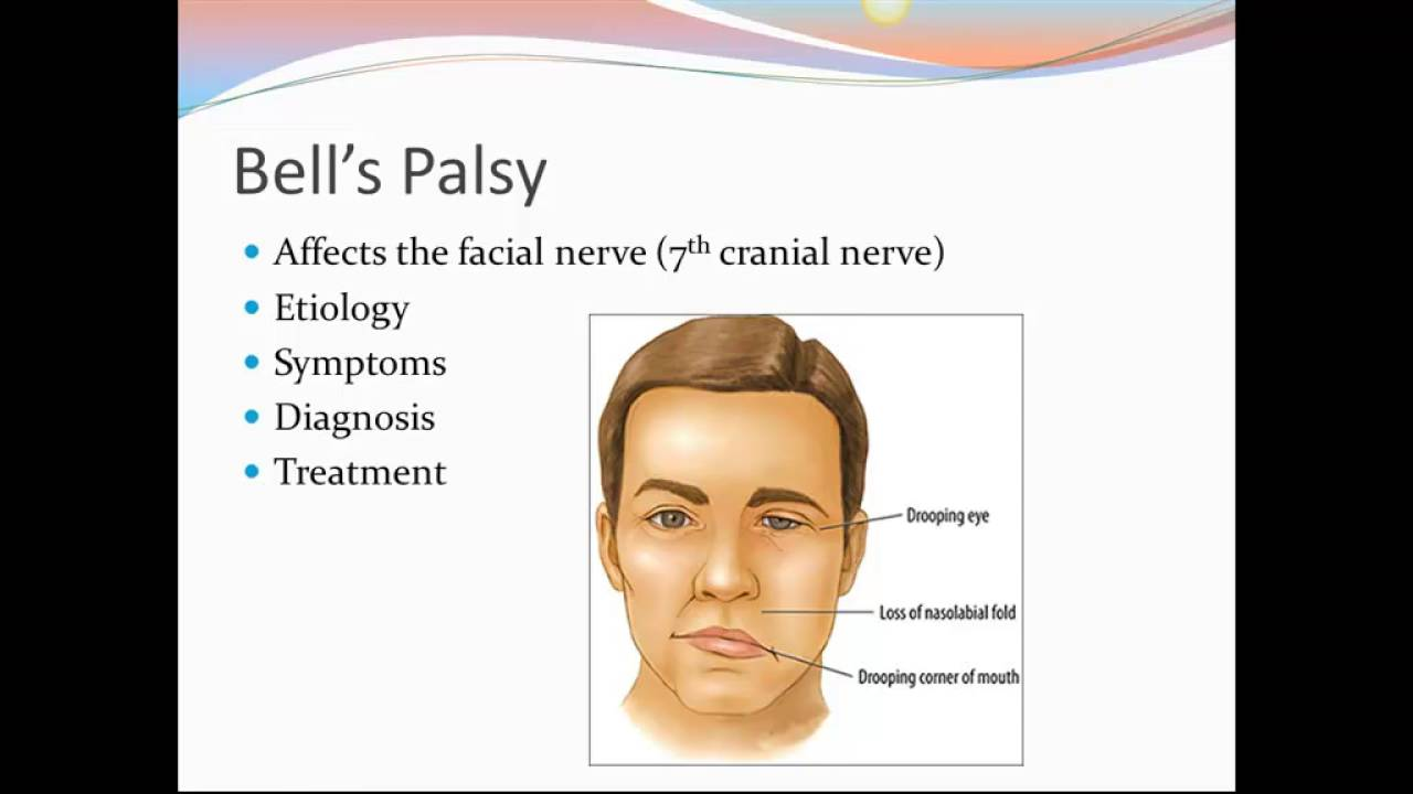 facial nerves diseases Nervous system