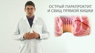 парапроктит и свищ прямой кишки
