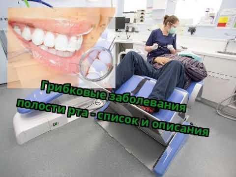 Грибковые заболевания полости рта - список и описания