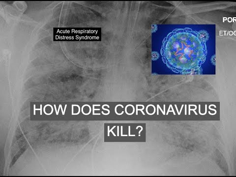 How Does Coronavirus Kill ?