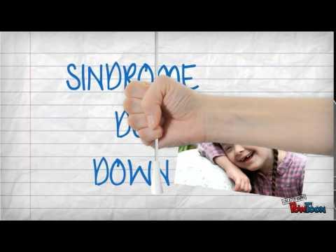sindrome de warkany e down