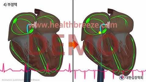 [시연용] c0281aako_[대한심장학회] 심방중격결손증(ASD)에 대한 경피적 폐쇄술 안내 (동의서용)