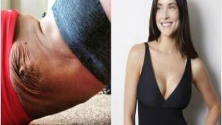 Super Easy Ways En Loose Skin After Pregnancy
