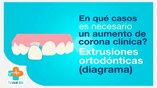 Aumento de corona clínica, extrusiones ortodónticas | Tu Salud Guía