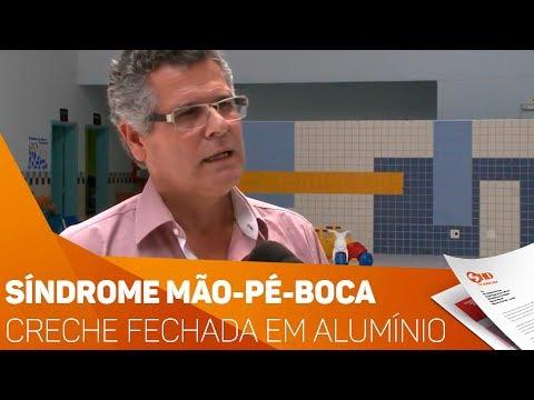 Síndrome mão-pé-boca: Creche fechada em Alumínio - TV SOROCABA/SBT