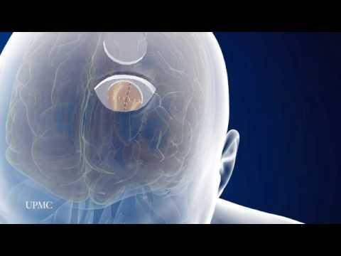 Neuroendoport (SM) Technique: Minimally Invasive Brain Surgery | UPMC
