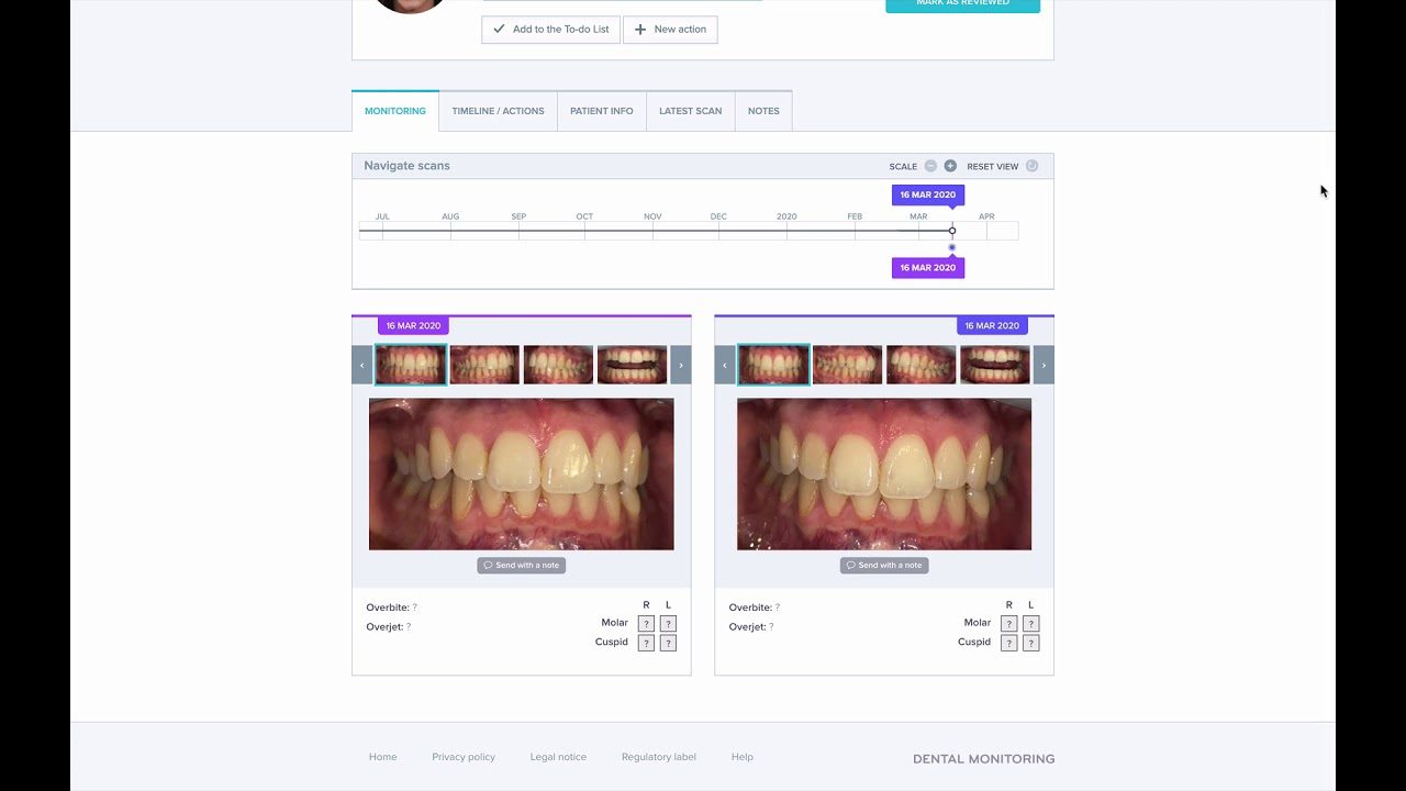 Dental Care Virtual Consultations And Remote Monitoring
