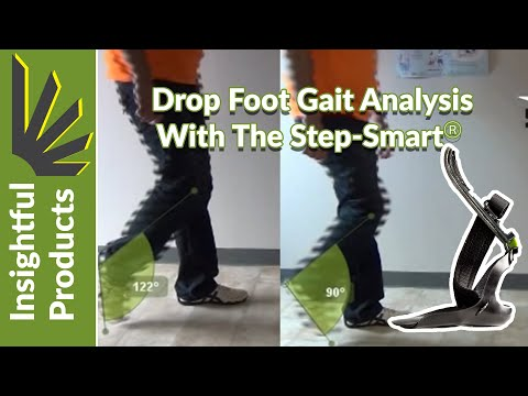 Drop Foot Gait Analysis Before and After with Step-Smart AFO