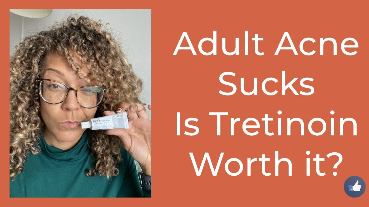 Tretinoin For Adult Acne, Is It Worth It?